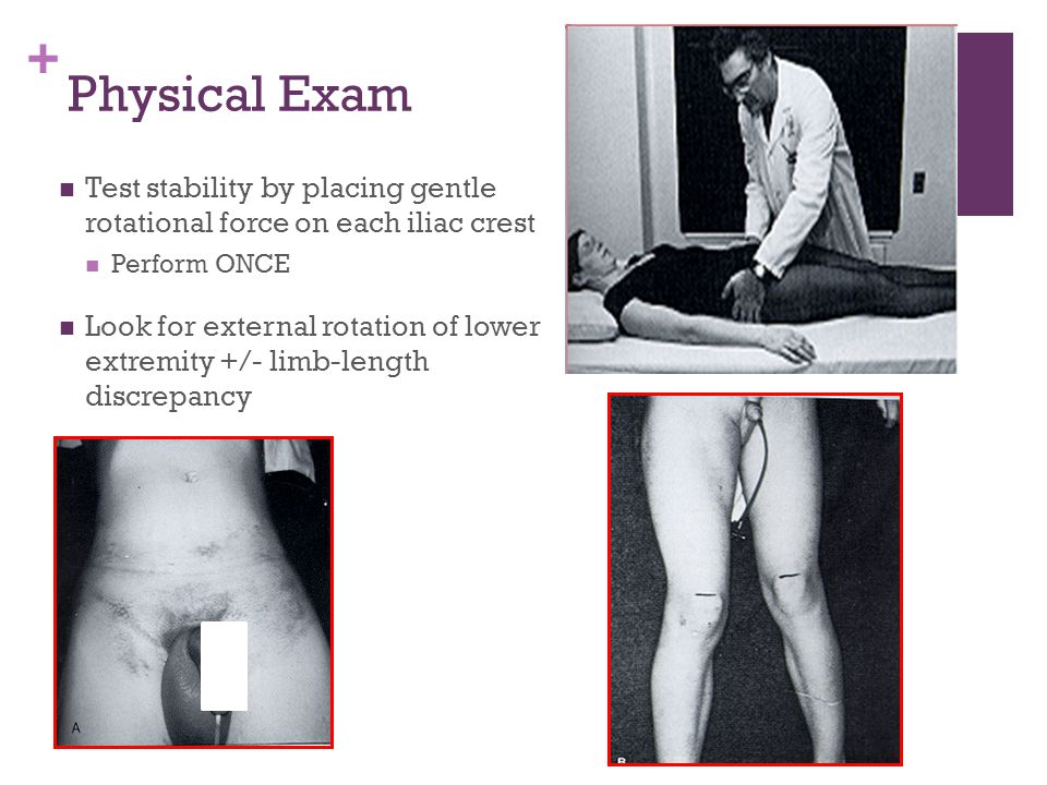 Physical Exam Test stability by placing gentle rotational force on each iliac crest. Perform ONCE.