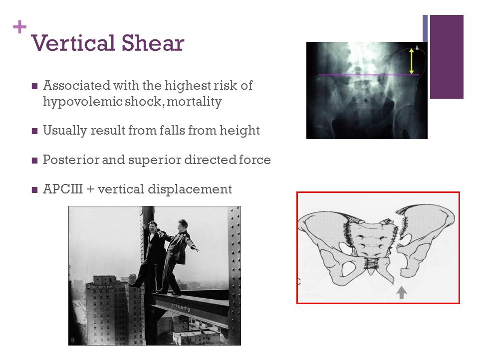 Vertical Shear Associated with the highest risk of hypovolemic shock, mortality. Usually result from falls from height.