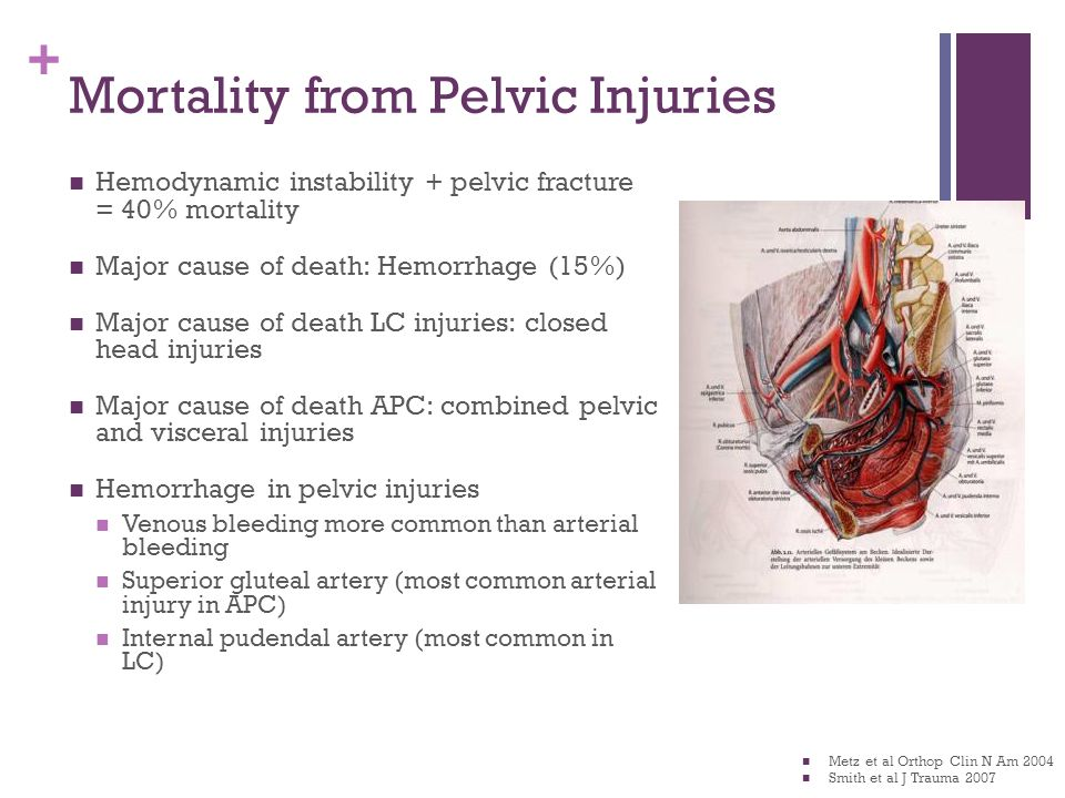 Mortality from Pelvic Injuries