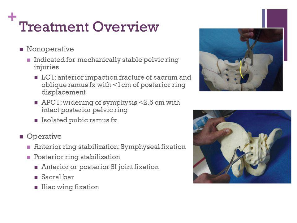 Treatment Overview Nonoperative Operative