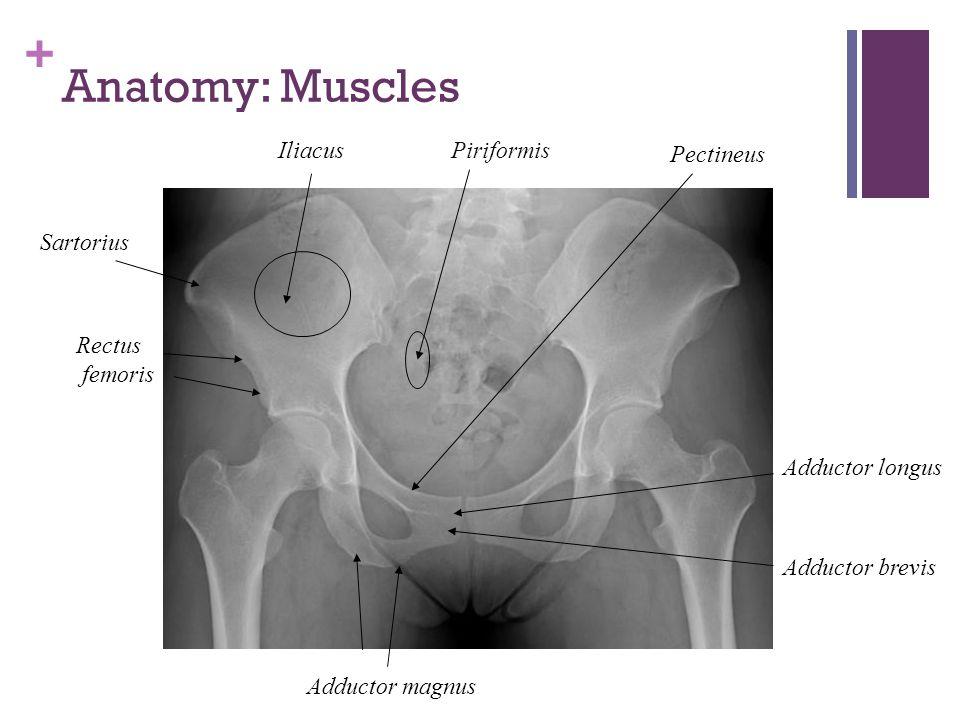 Anatomy: Muscles Iliacus Piriformis Pectineus Sartorius Rectus femoris