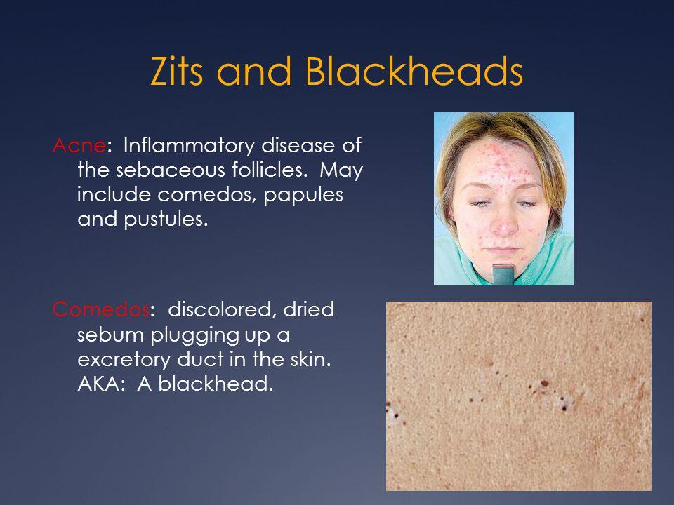 Zits and Blackheads