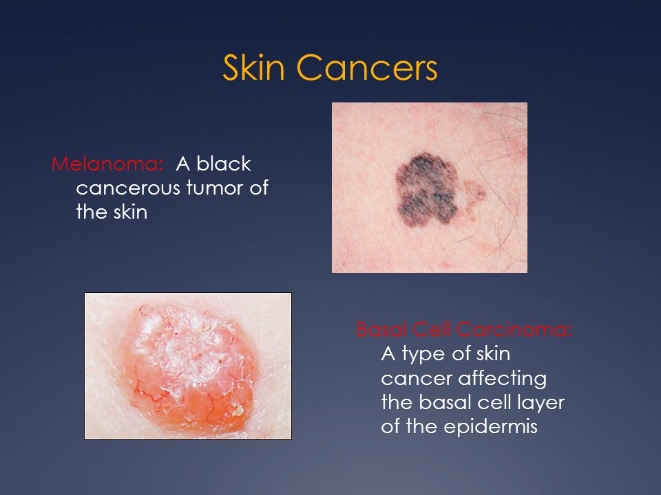 Skin Cancers Melanoma: A black cancerous tumor of the skin
