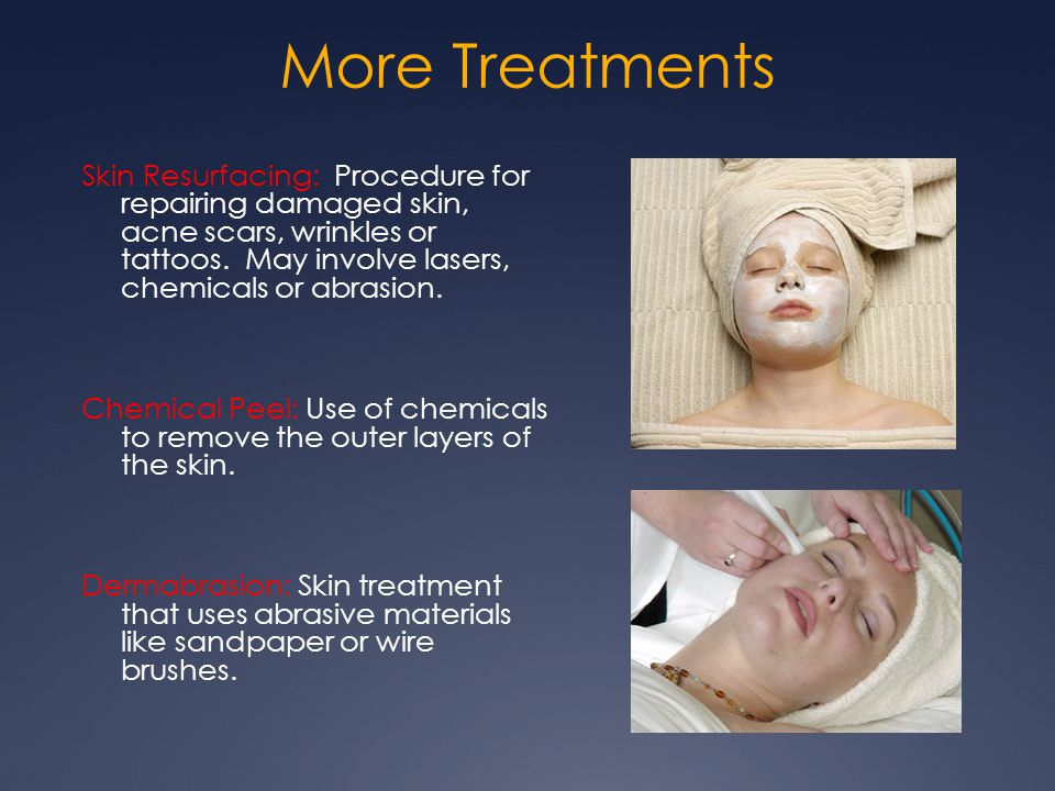 More Treatments