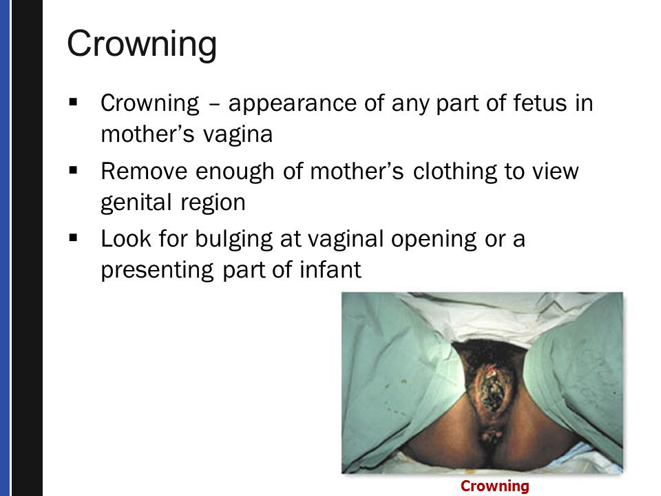 Crowning Crowning – appearance of any part of fetus in mother's vagina