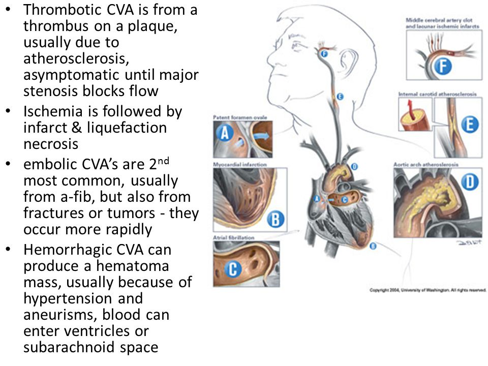 Thrombotic CVA is from a thrombus on a plaque, usually due to atherosclerosis, asymptomatic until major stenosis blocks flow