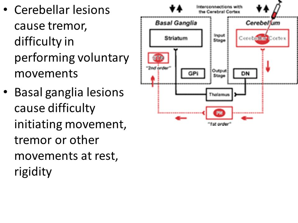 Cerebellar lesions cause tremor, difficulty in performing voluntary movements