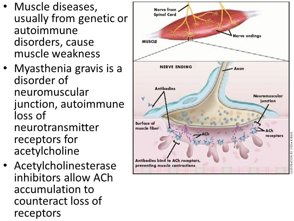 Muscle diseases, usually from genetic or autoimmune disorders, cause muscle weakness