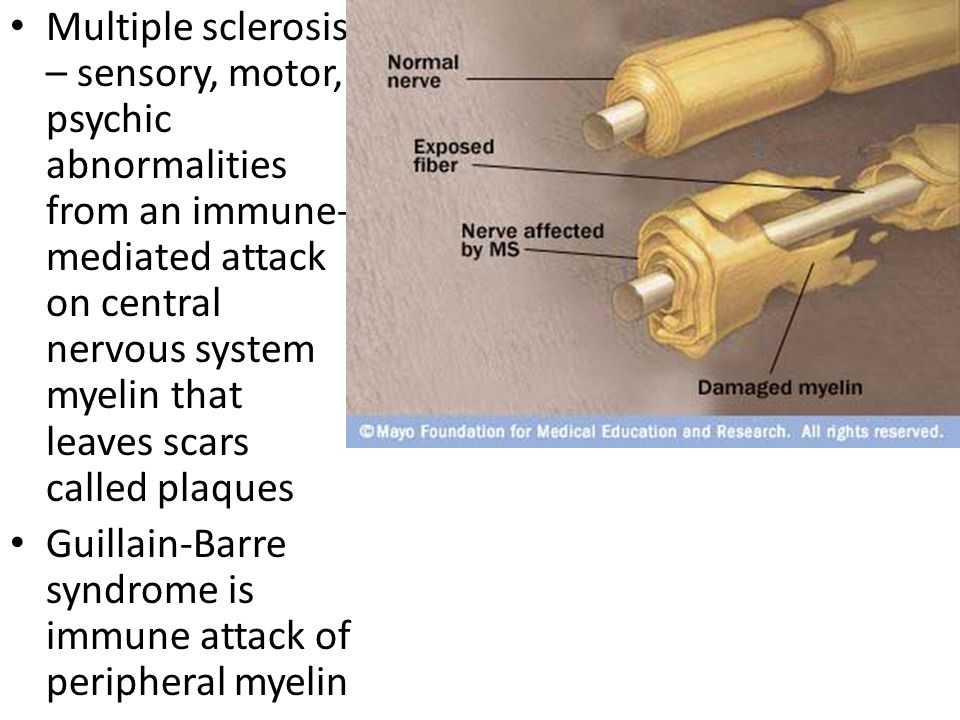 Multiple sclerosis – sensory, motor, psychic abnormalities from an immune-mediated attack on central nervous system myelin that leaves scars called plaques