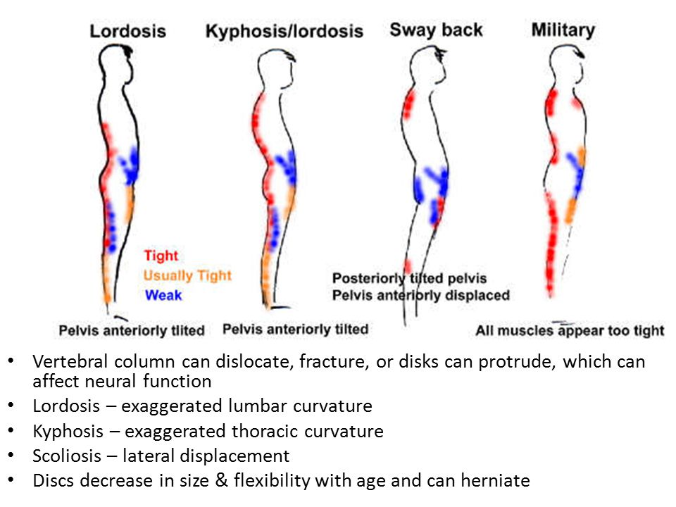 Vertebral column can dislocate, fracture, or disks can protrude, which can affect neural function