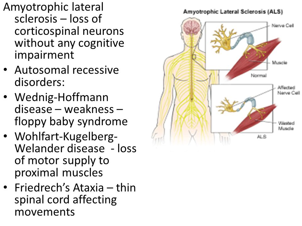 Amyotrophic lateral sclerosis – loss of corticospinal neurons without any cognitive impairment