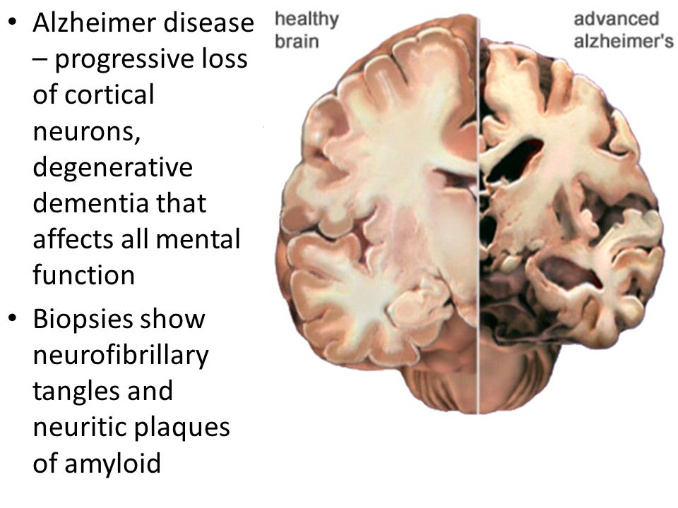Alzheimer disease – progressive loss of cortical neurons, degenerative dementia that affects all mental function