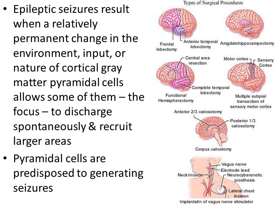 Epileptic seizures result when a relatively permanent change in the environment, input, or nature of cortical gray matter pyramidal cells allows some of them – the focus – to discharge spontaneously & recruit larger areas
