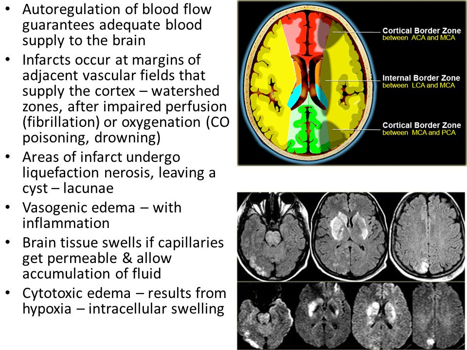 Autoregulation of blood flow guarantees adequate blood supply to the brain