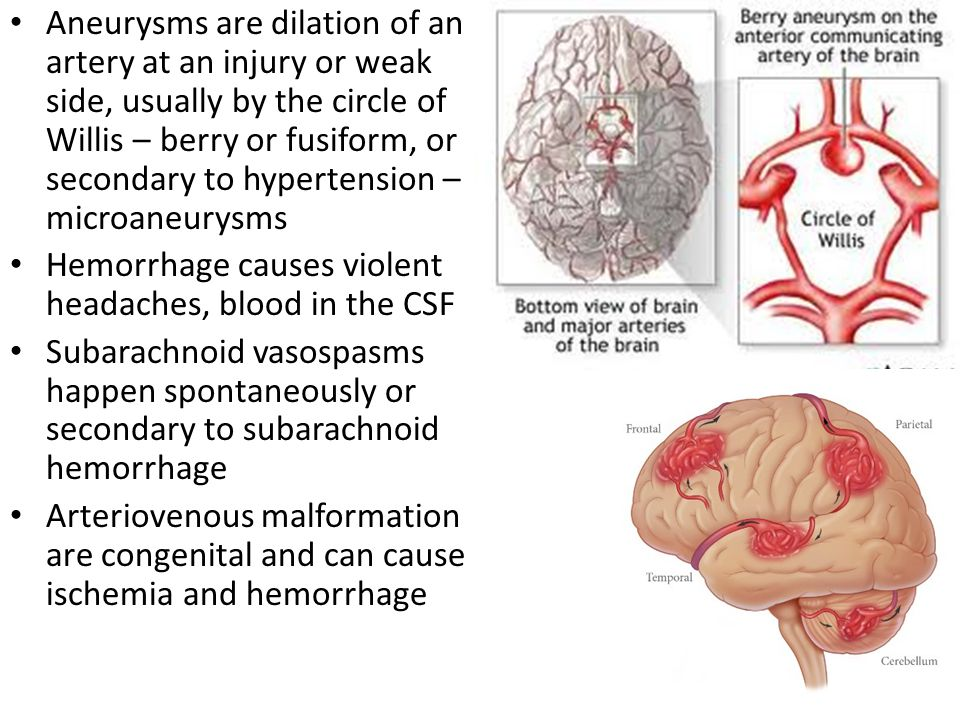 Aneurysms are dilation of an artery at an injury or weak side, usually by the circle of Willis – berry or fusiform, or secondary to hypertension – microaneurysms