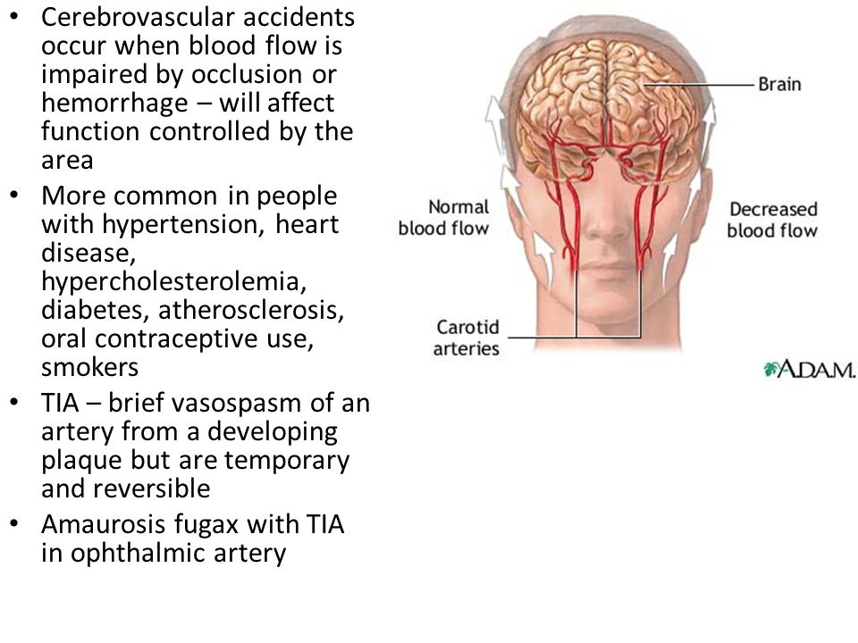 Cerebrovascular accidents occur when blood flow is impaired by occlusion or hemorrhage – will affect function controlled by the area
