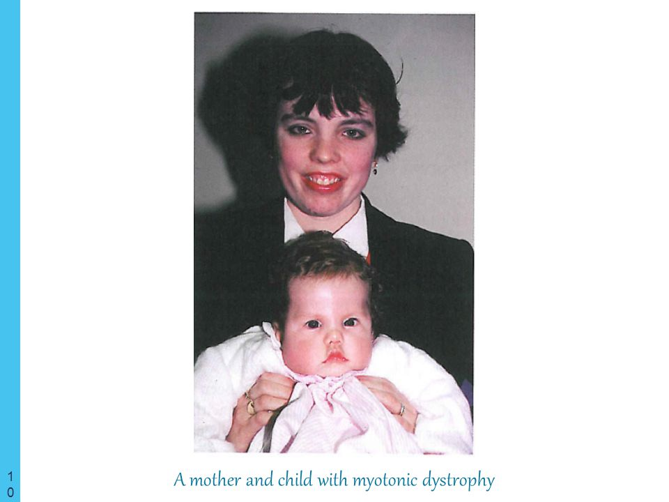 A mother and child with myotonic dystrophy