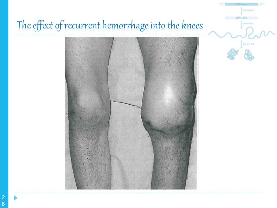 The effect of recurrent hemorrhage into the knees