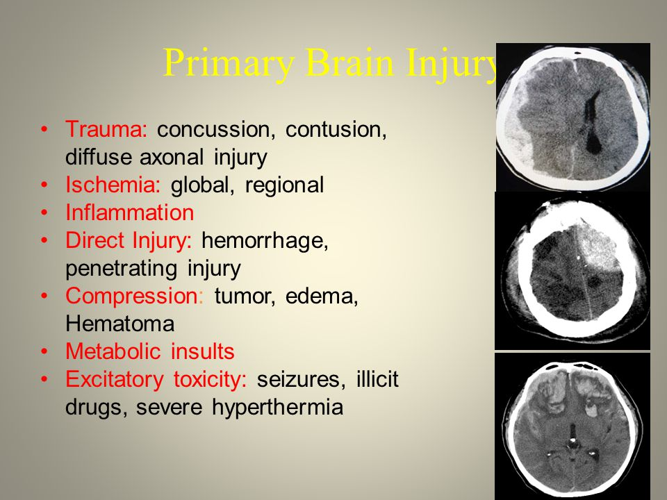 Primary Brain Injury Trauma: concussion, contusion,