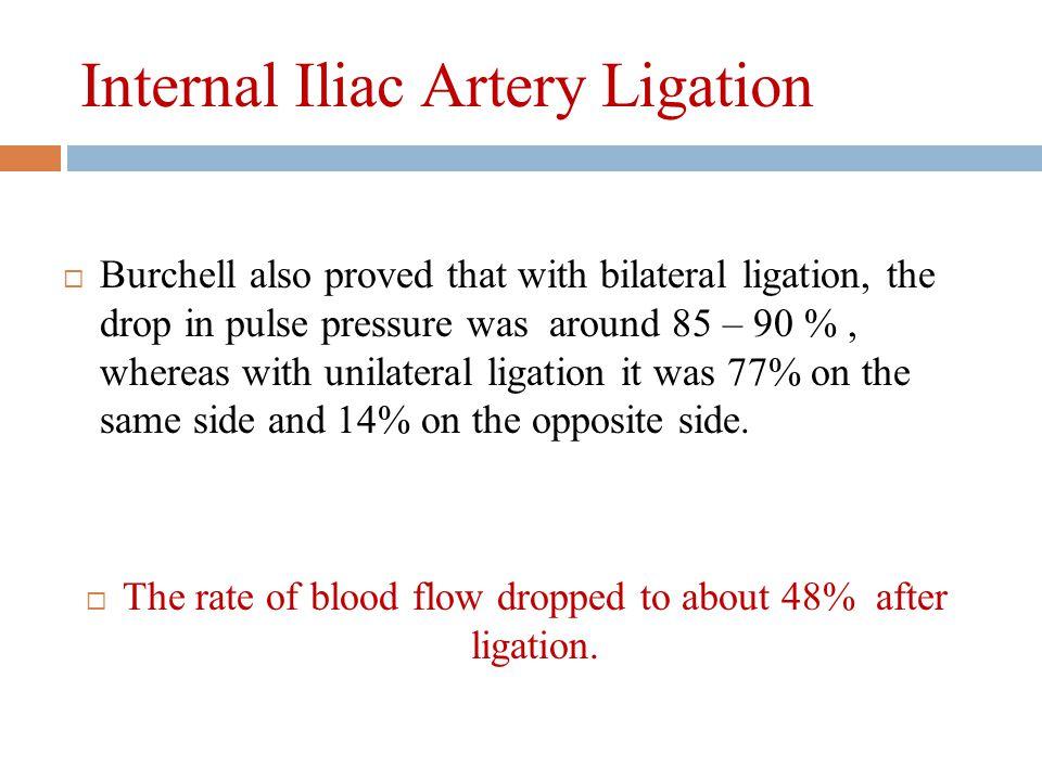 Internal Iliac Artery Ligation