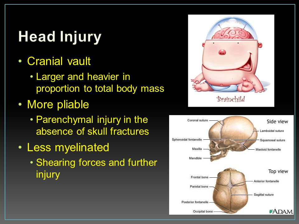 Head Injury Cranial vault More pliable Less myelinated
