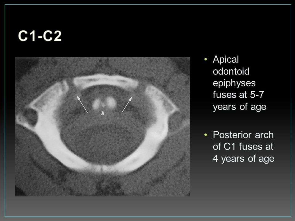 C1-C2 Apical odontoid epiphyses fuses at 5-7 years of age