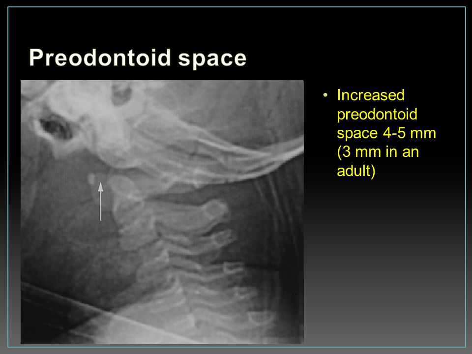Preodontoid space Increased preodontoid space 4-5 mm (3 mm in an adult)