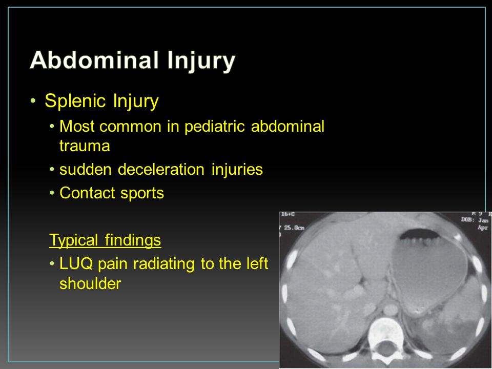 Abdominal Injury Splenic Injury