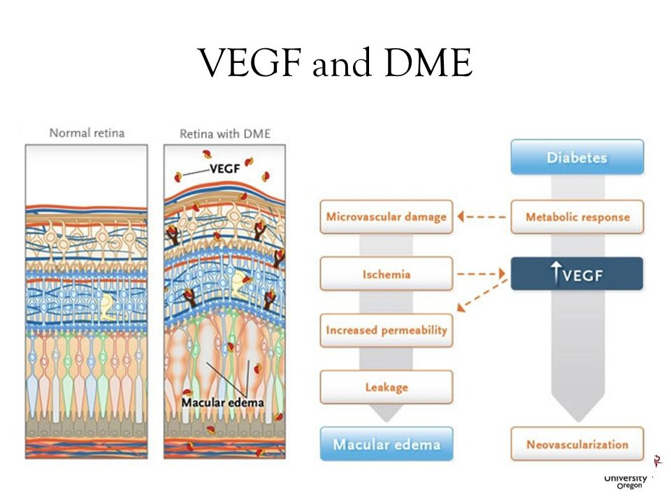 VEGF and DME