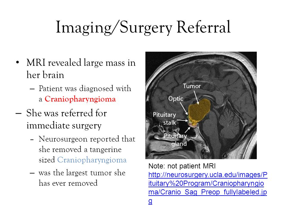 Imaging/Surgery Referral