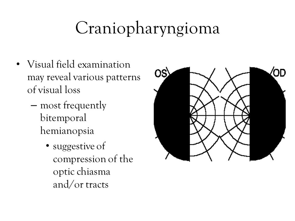 Craniopharyngioma Visual field examination may reveal various patterns of visual loss. most frequently bitemporal hemianopsia.