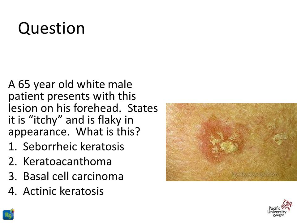 Question A 65 year old white male patient presents with this lesion on his forehead. States it is itchy and is flaky in appearance. What is this