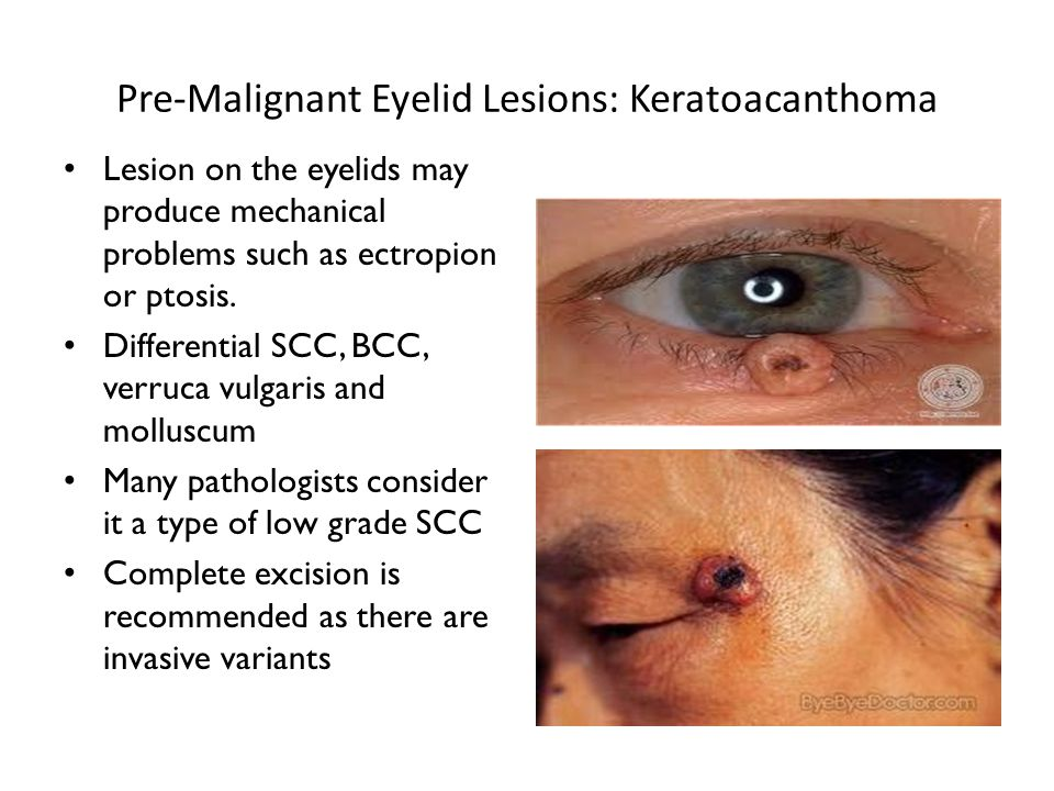 Pre-Malignant Eyelid Lesions: Keratoacanthoma