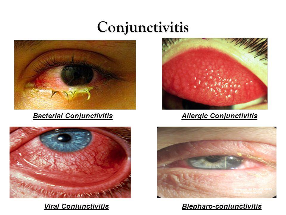 Conjunctivitis Bacterial Conjunctivitis Allergic Conjunctivitis
