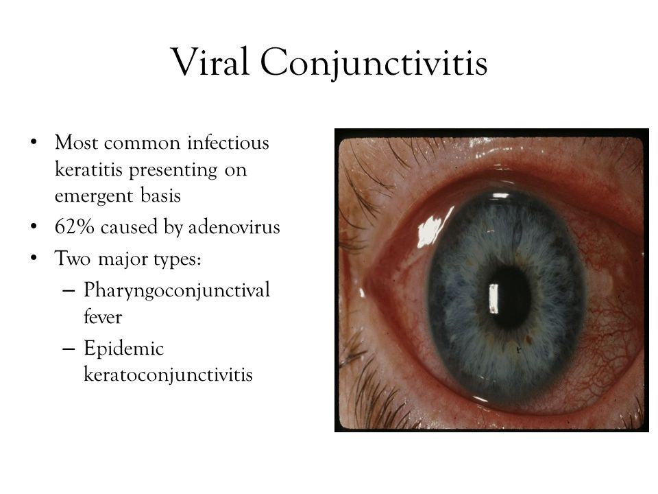 Viral Conjunctivitis Most common infectious keratitis presenting on emergent basis. 62% caused by adenovirus.