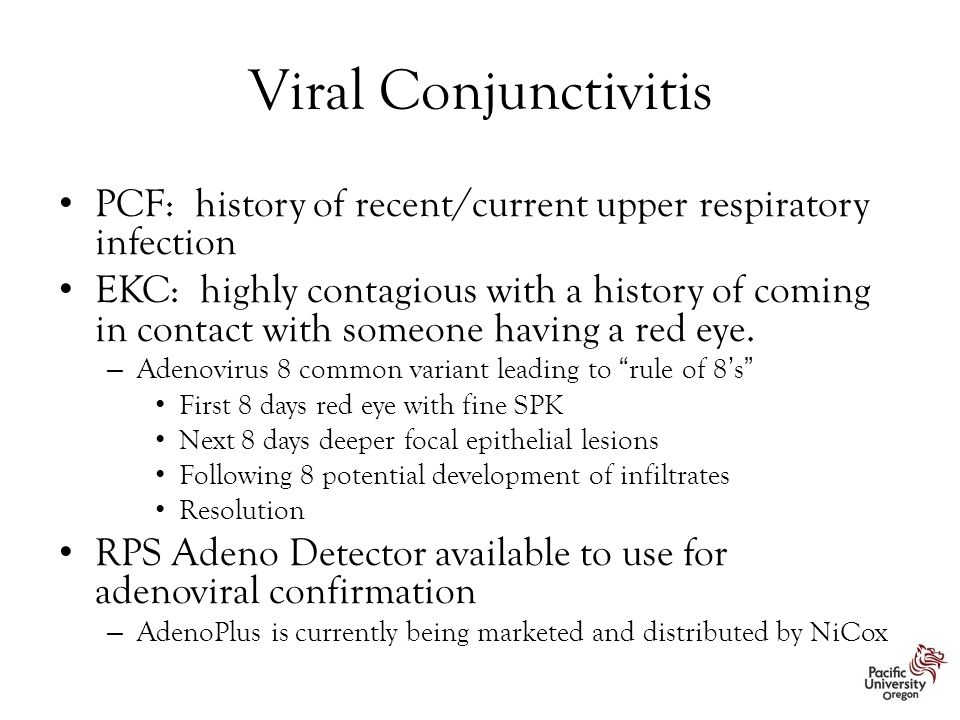 Viral Conjunctivitis PCF: history of recent/current upper respiratory infection.