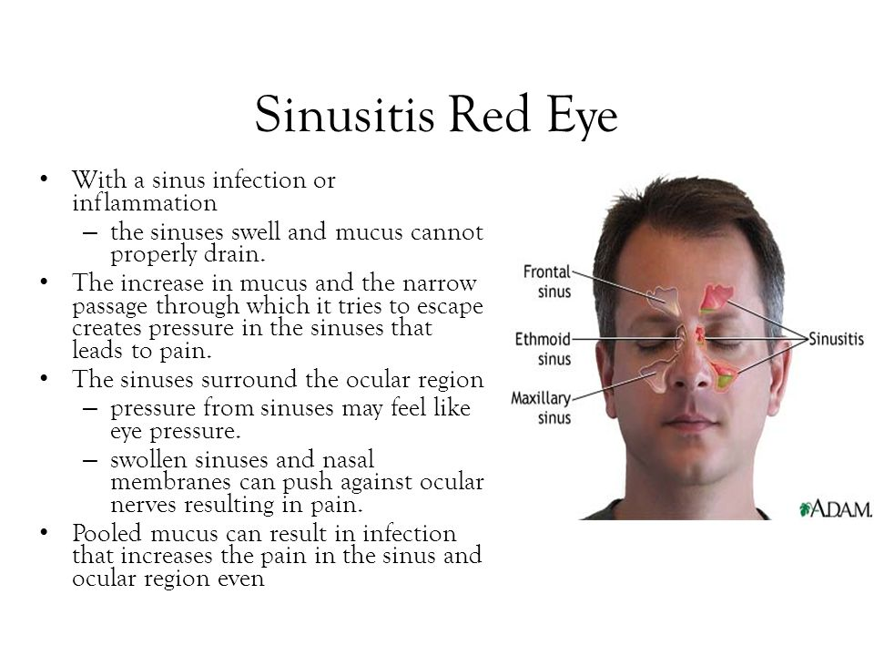 Sinusitis Red Eye With a sinus infection or inflammation