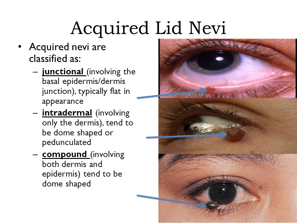 Acquired Lid Nevi Acquired nevi are classified as: