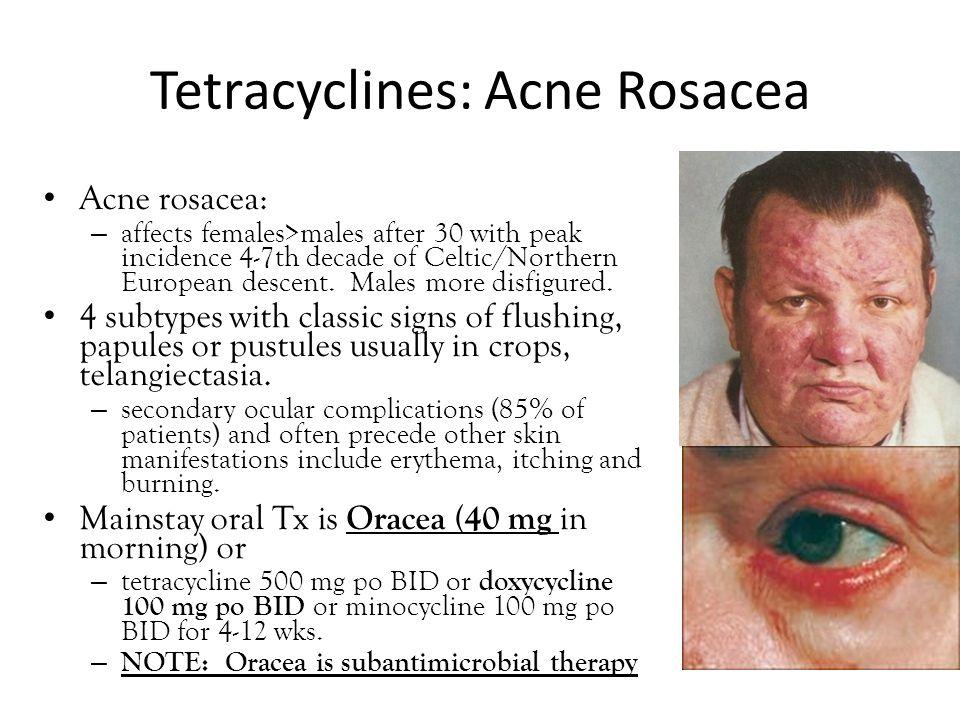 Tetracyclines: Acne Rosacea