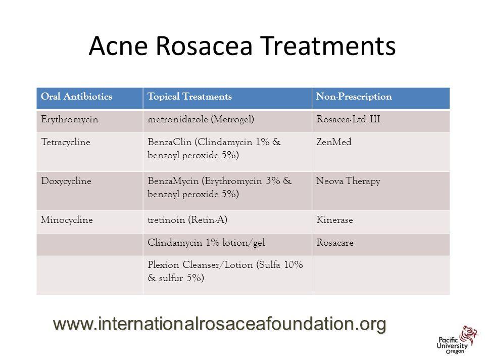 Acne Rosacea Treatments