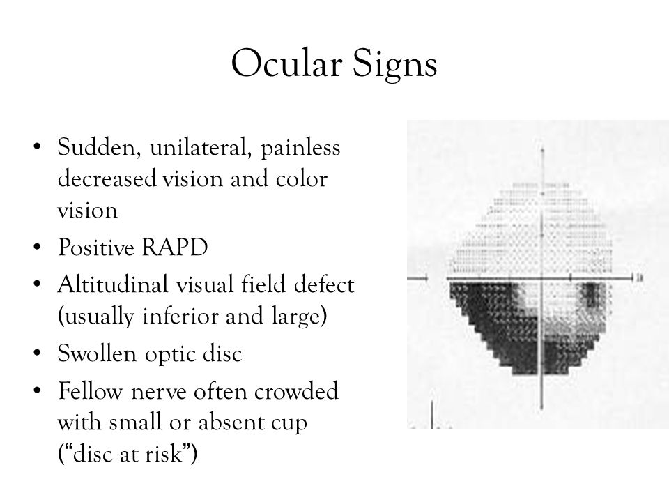 Ocular Signs Sudden, unilateral, painless decreased vision and color vision. Positive RAPD.