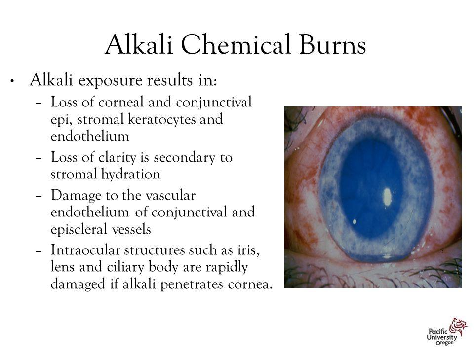 Alkali Chemical Burns Alkali exposure results in: