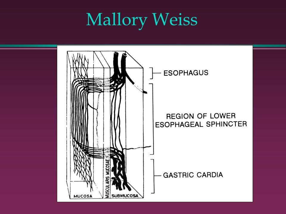 Mallory Weiss