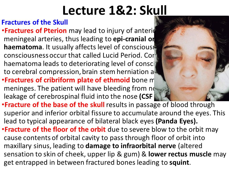 Lecture 1&2: Skull Fractures of the Skull