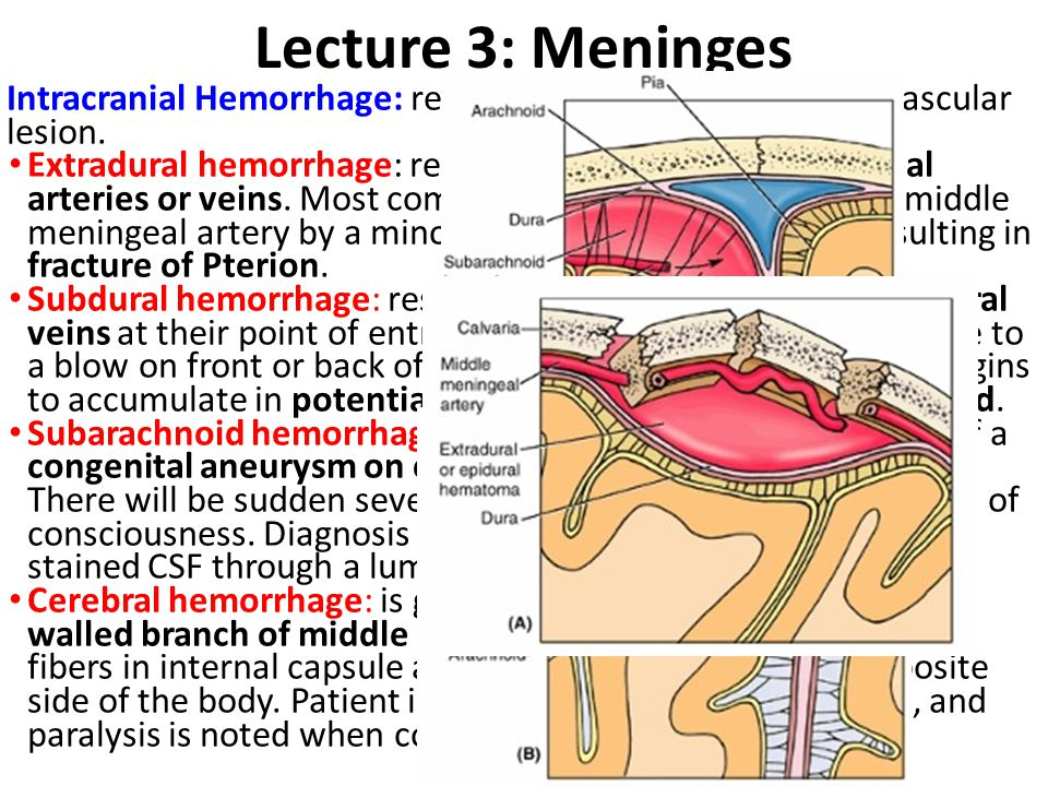 Lecture 3: Meninges Intracranial Hemorrhage: result from trauma or cerebral vascular lesion.