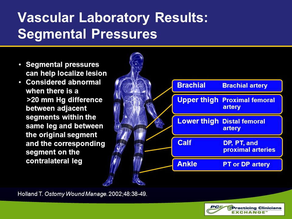 Vascular Laboratory Results: Segmental Pressures