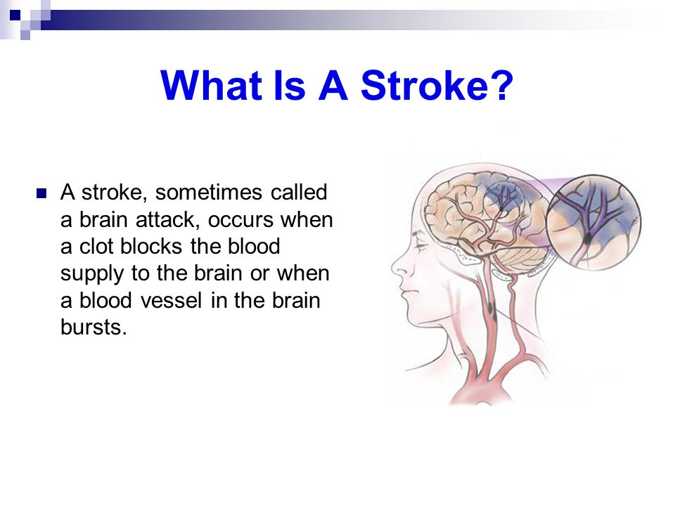 What Is A Stroke