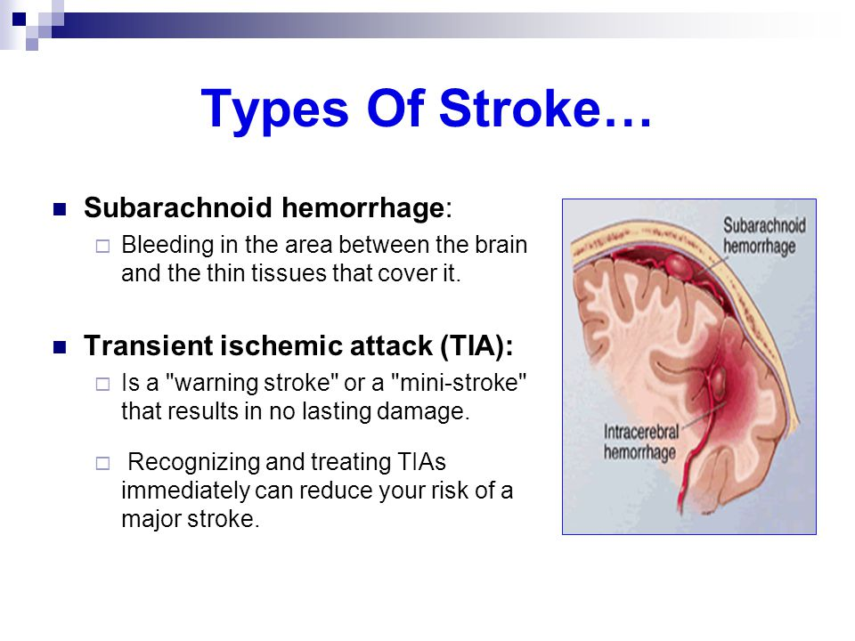 Types Of Stroke… Subarachnoid hemorrhage: