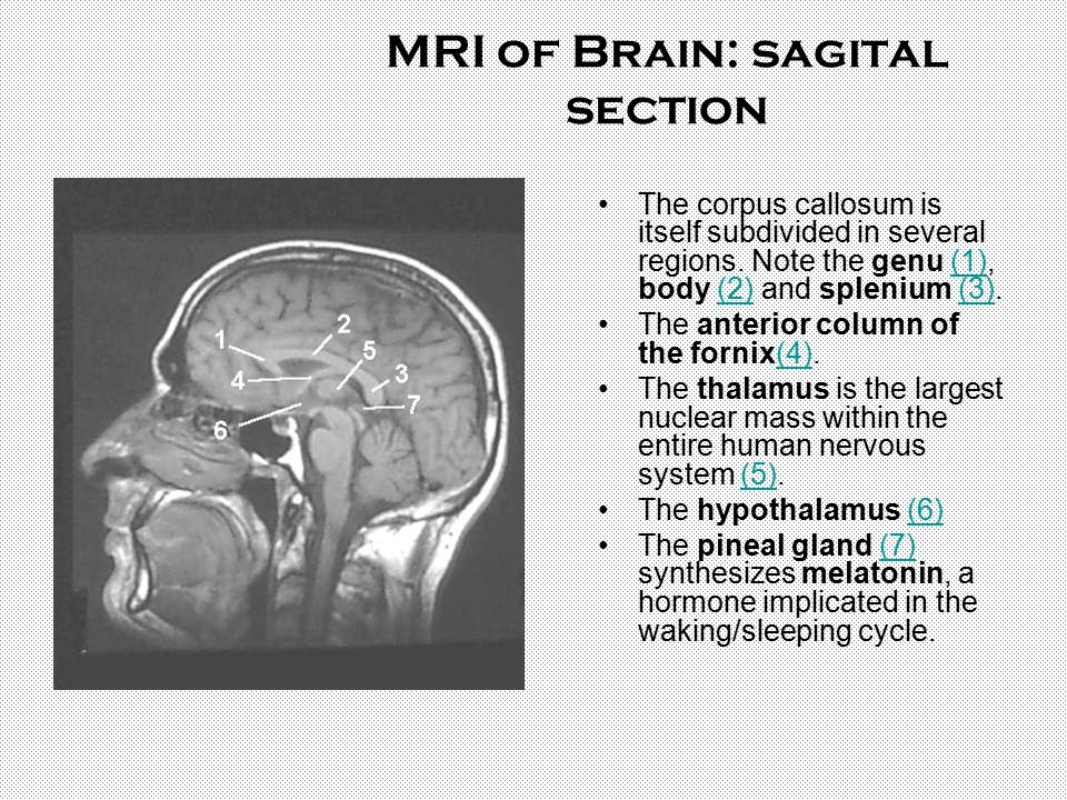 MRI of Brain: sagital section