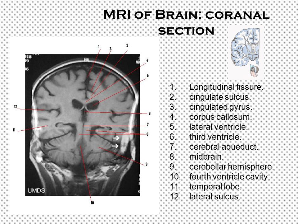 MRI of Brain: coranal section